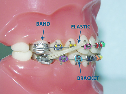 Orthodontic Elastics Why Do We Beg And Plead For You To Wear